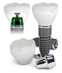 Dental Implants in Santee