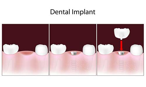 Santee Implant Dentist