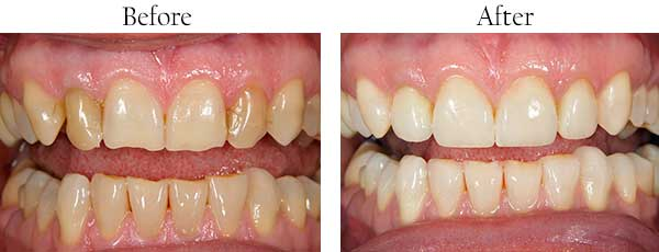El Cajon Before and After Dental Implants