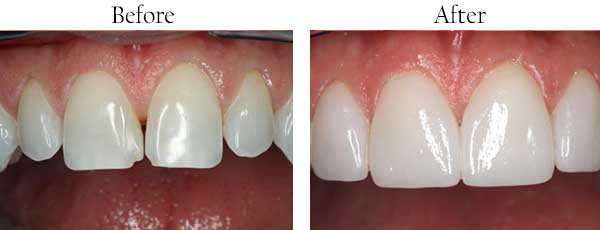 Santee Before and After Teeth Whitening